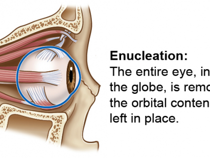Enucleation