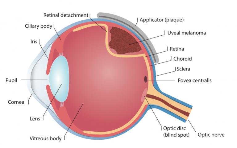 CTOOS-choroidal-melanoma